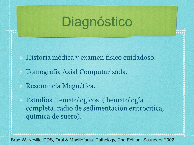 Diagnóstico Historia médica y examen físico cuidadoso. Tomografía Axial Computarizada. Resonancia Magnética. Estudios Hematológicos ( hematología comp