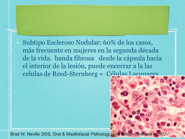 Subtipo Escleroso Nodular: 60% de los casos, más frecuente en mujeres en la segunda década de la vida. banda fibrosa desde la cápsula hacia el interio