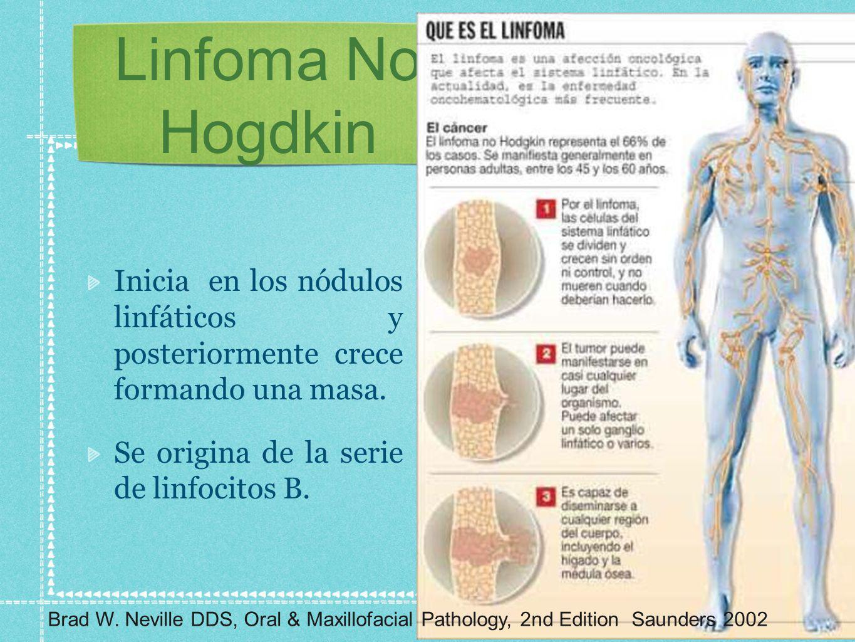Linfoma No Hogdkin Inicia en los nódulos linfáticos y posteriormente crece formando una masa. Se origina de la serie de linfocitos B. Brad W. Neville
