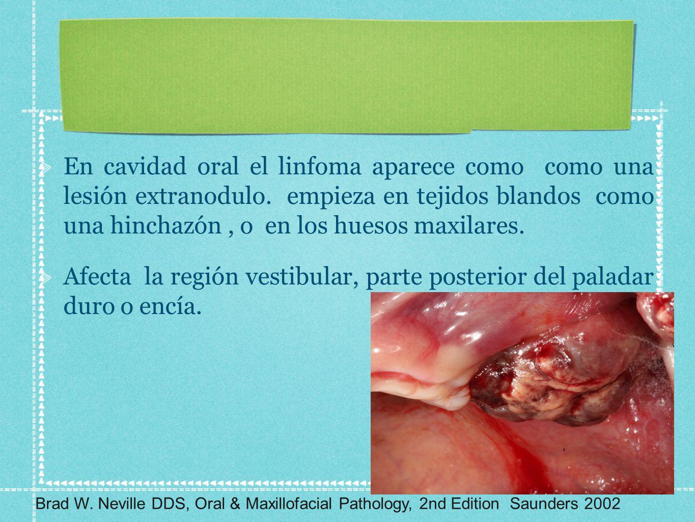 En cavidad oral el linfoma aparece como como una lesión extranodulo. empieza en tejidos blandos como una hinchazón, o en los huesos maxilares. Afecta
