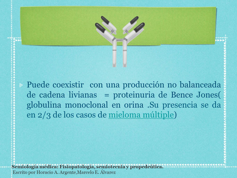 Puede coexistir con una producción no balanceada de cadena livianas = proteinuria de Bence Jones( globulina monoclonal en orina.Su presencia se da en