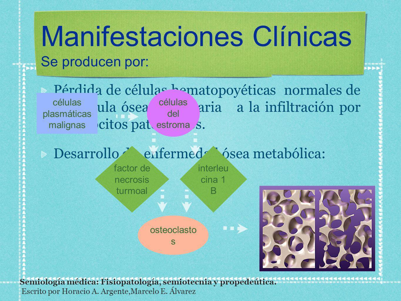 Manifestaciones Clínicas Se producen por: Pérdida de células hematopoyéticas normales de la médula ósea secundaria a la infiltración por plasmocitos p