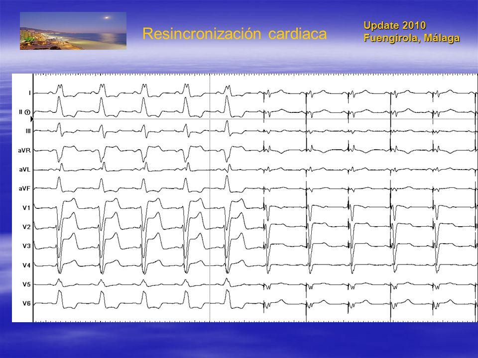 1820 pacientes Clase I-II NYHA FE 30% QRS 130 ms