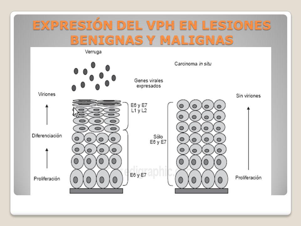 EXPRESIÓN DEL VPH EN LESIONES BENIGNAS Y MALIGNAS