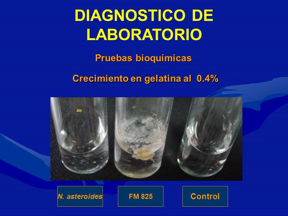 Crecimiento en gelatina al 0.4% FM 825N. asteroides Control Pruebas bioquímicas DIAGNOSTICO DE LABORATORIO
