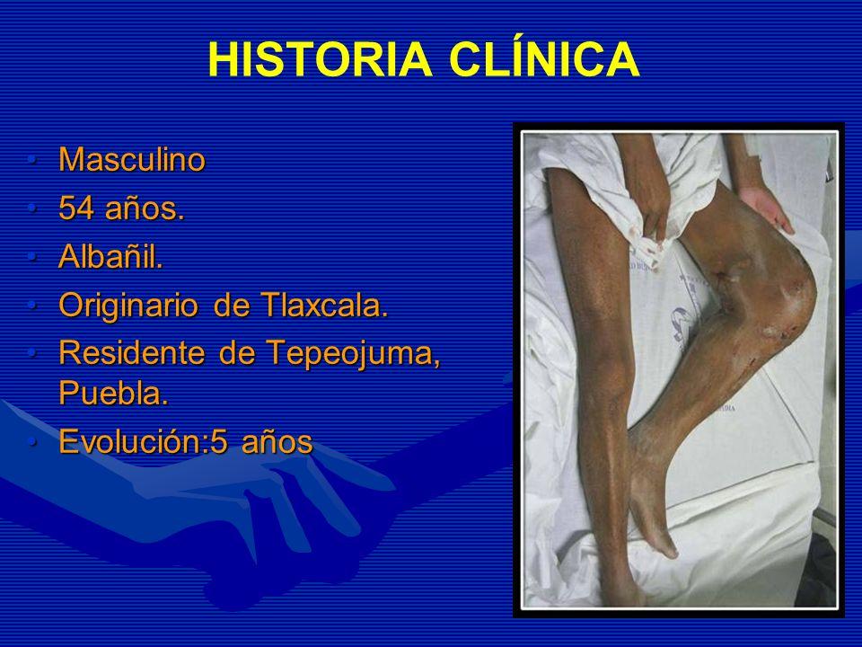 HISTORIA CLÍNICA MasculinoMasculino 54 años.54 años. Albañil.Albañil. Originario de Tlaxcala.Originario de Tlaxcala. Residente de Tepeojuma, Puebla.Re