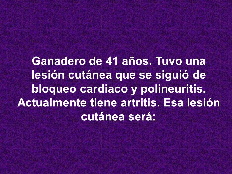 SUSTRATO ANATOMO PATOLÓGICA DE LA DERMATOSIS LEUCOCITOCLASIA. NEUTROFÍLICA FEBRIL AGUDA MARCADOR FECAL DE ACTIVIDAD CALPROTECTINA LESIÓN AP PRINCIPAL