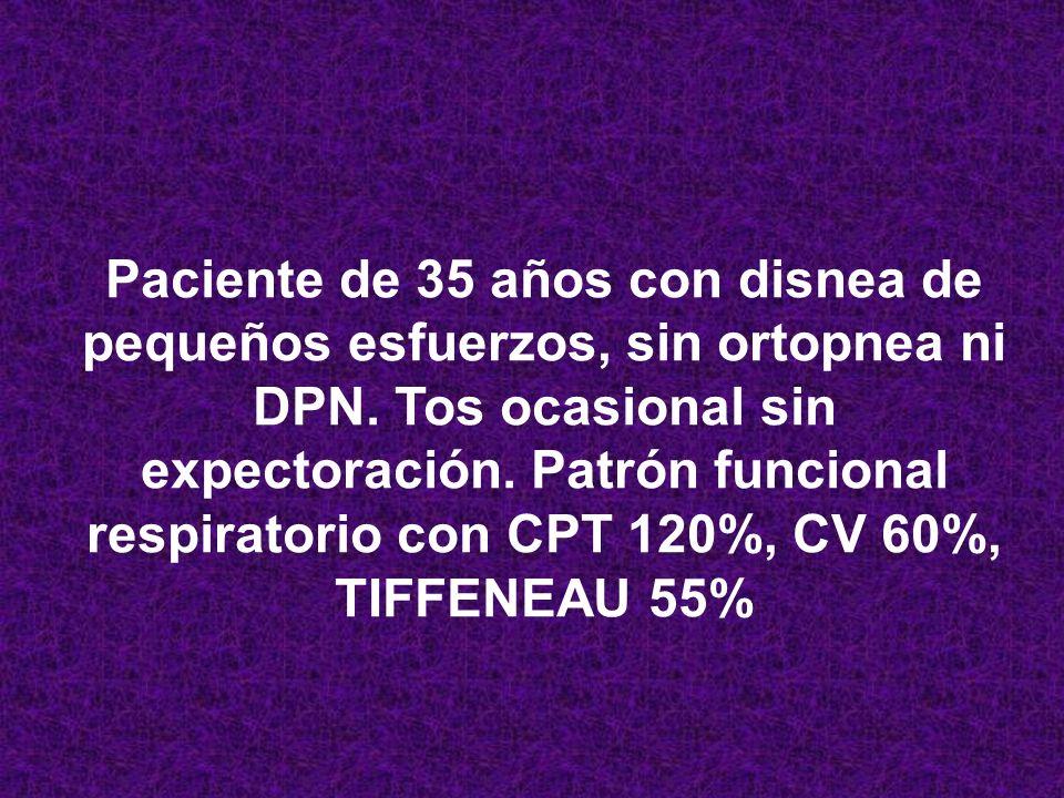 ADENOPATÍAS, LINFOCITOS B CD 15-25-30 HODGKIN LEUCOCITOSIS + ESPLENOMEGALIA + 3% BLASTOS + abl-bcr LEUCEMIA MEILOIDE CRÓNICA ADENOPATÍAS + LINFOCITOS