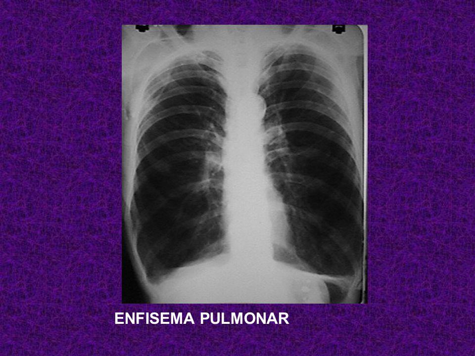 Paciente de 35 años con disnea de pequeños esfuerzos, sin ortopnea ni DPN. Tos ocasional sin expectoración. Patrón funcional respiratorio con CPT 120%