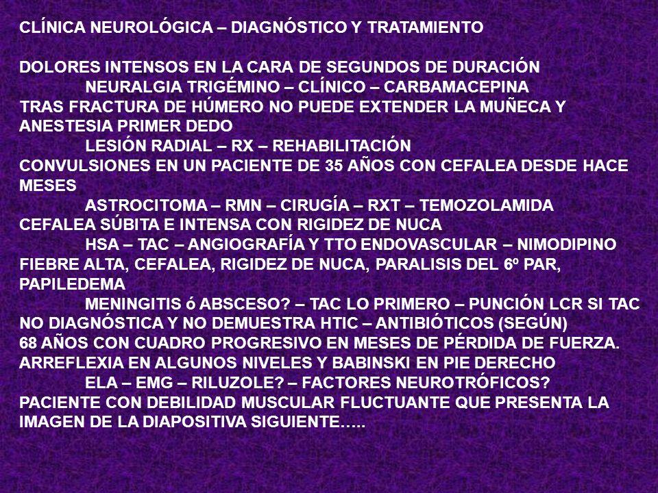 CLÍNICA NEUROLÓGICA – DIAGNÓSTICO Y TRATAMIENTO DEBILIDAD PROGRESIVA CON INICIO DISTAL Y ASCENDENTE EN 48 HORAS GUILLAIN BARRÉ – EMG – LCR – Ac – IGIV