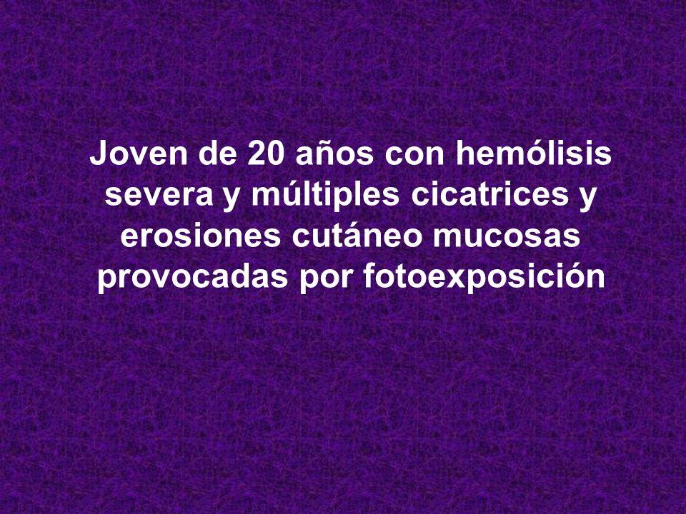 ENFERMEDAD DE WILSON CERULOPLASMINA – CUPREMIA – CUPRURIA – BIOPSIA HÍGADO CRIBADO GEN ATP7B A FAMILIARES SULFATO DE CINC Y TETRATIOMOLIBDATO