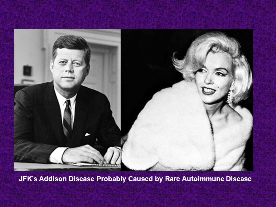 JFKs Addison Disease Probably Caused by Rare Autoimmune Disease