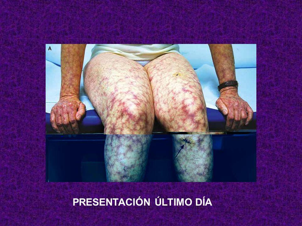 Púrpura, HTA, dolor abdominal, hematuria, dolor testicular, Rx tórax normal, autoanticuerpos negativos y estas piernas