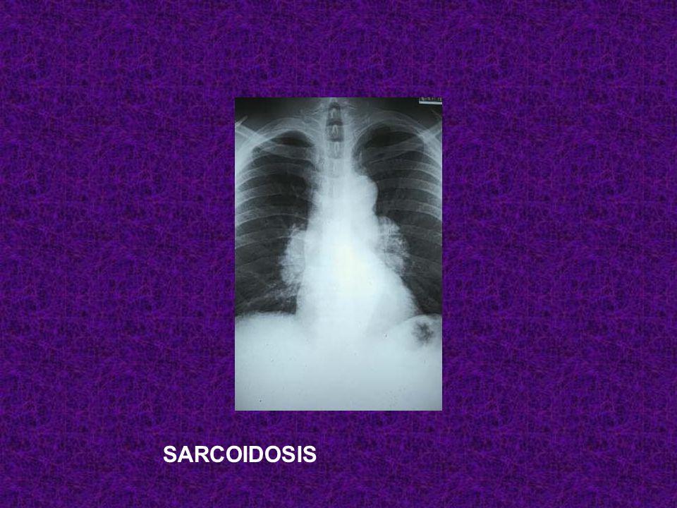 Después de un cuadro febril con uveítis y parálisis facial, una mujer presenta esta radiografía de tórax…