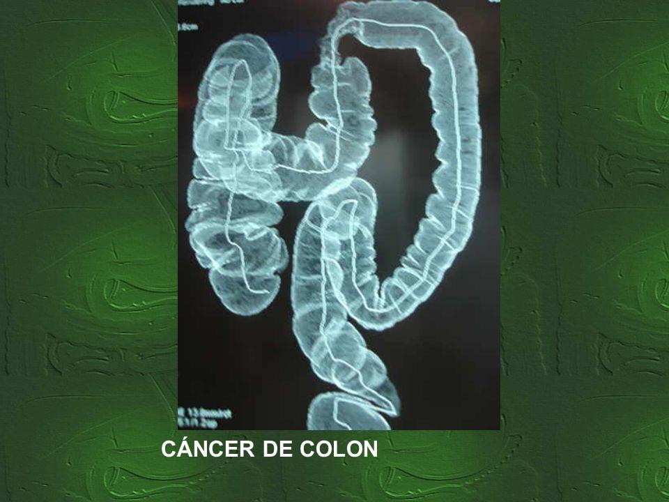 Paciente de 63 años, fumador desde los 16. Consulta por alteración en el hábito intestinal y rectorragia. Ha perdido 7 kg de peso en el último mes. Se