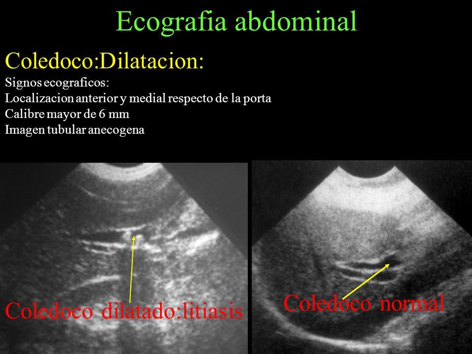 Ecografia abdominal Coledoco:Dilatacion: Signos ecograficos: Localizacion anterior y medial respecto de la porta Calibre mayor de 6 mm Imagen tubular