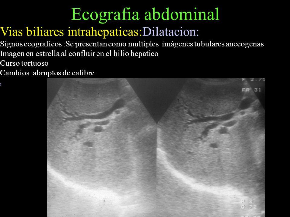 Ecografia abdominal Vias biliares intrahepaticas:Dilatacion: Signos ecograficos :Se presentan como multiples imágenes tubulares anecogenas Imagen en e