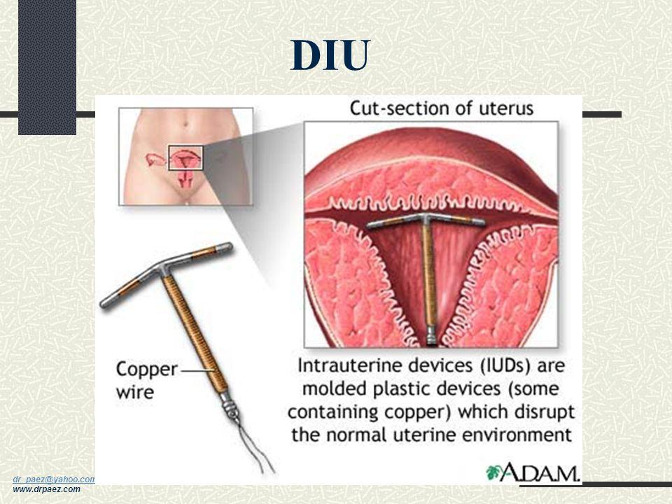 dr_paez@yahoo.com dr_paez@yahoo.com www.drpaez.com Anticonceptivos Hormonales Combinados o solo progesterona Más utilizados Inhiben la ovulación, modi