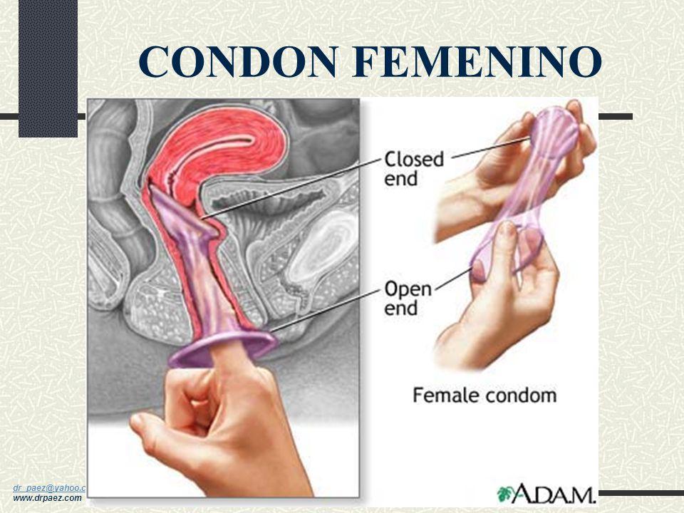 dr_paez@yahoo.com dr_paez@yahoo.com www.drpaez.com CONDON MASCULINO con/sin espermicida
