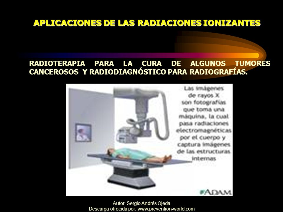 Autor: Sergio Andrés Ojeda Descarga ofrecida por: www.prevention-world.com APLICACIONES DE LAS RADIACIONES IONIZANTES RADIOTERAPIA PARA LA CURA DE ALG