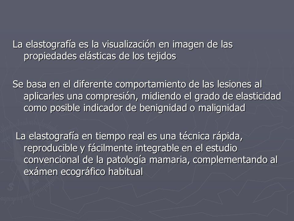 La elastografía es la visualización en imagen de las propiedades elásticas de los tejidos Se basa en el diferente comportamiento de las lesiones al ap