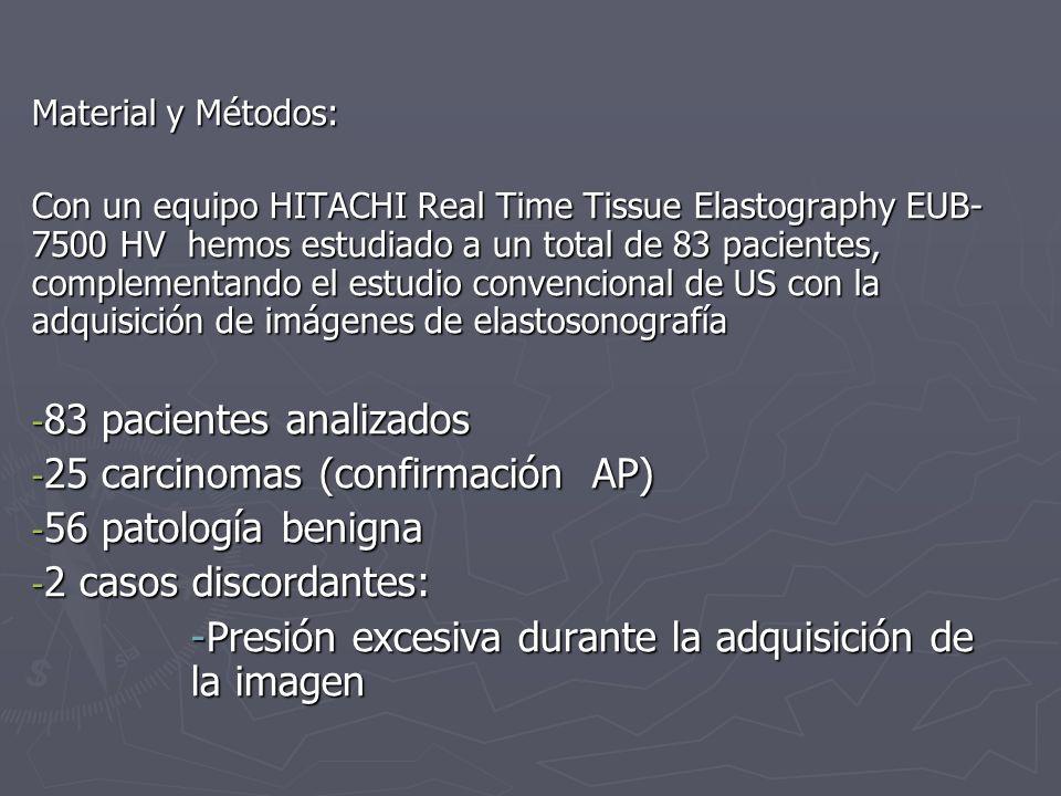 Material y Métodos: Con un equipo HITACHI Real Time Tissue Elastography EUB- 7500 HV hemos estudiado a un total de 83 pacientes, complementando el est