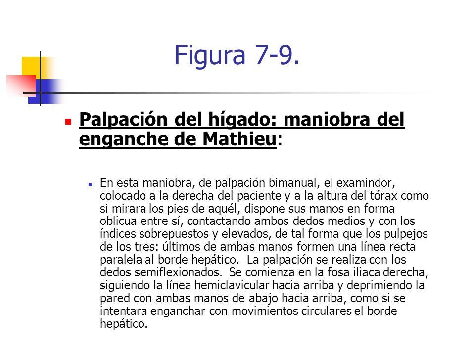 Figura 7-9. Palpación del hígado: maniobra del enganche de Mathieu: En esta maniobra, de palpación bimanual, el examindor, colocado a la derecha del p
