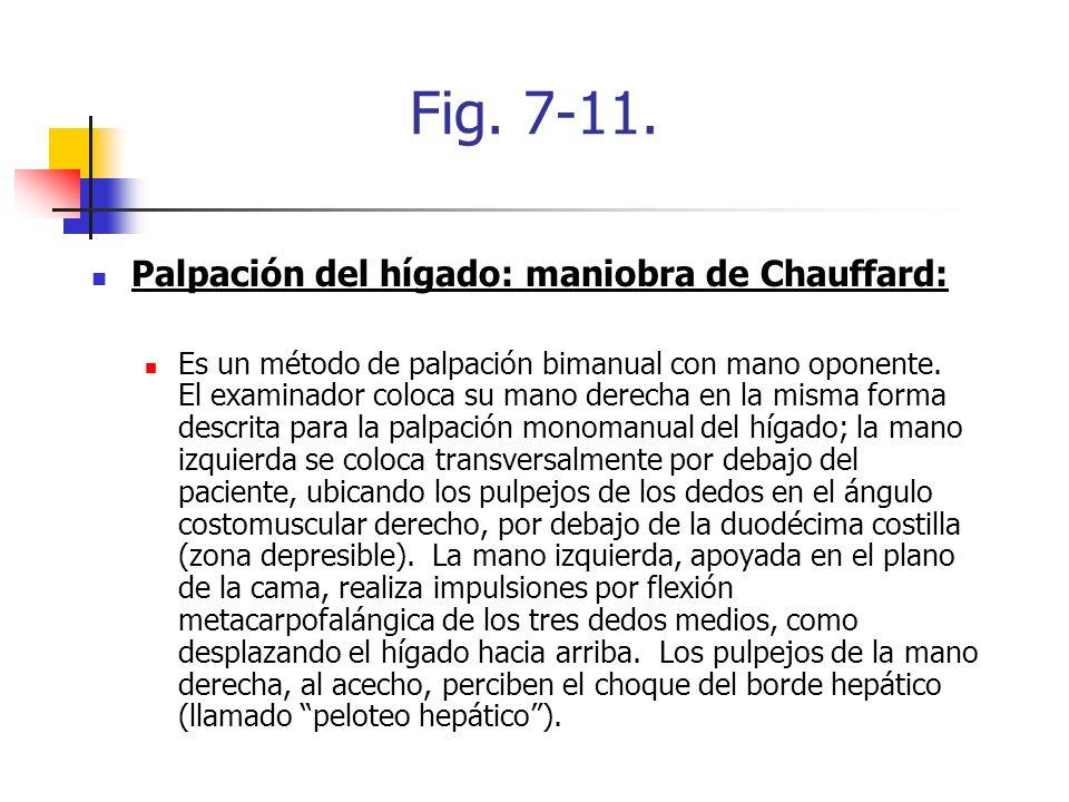 Fig. 7-11. Palpación del hígado: maniobra de Chauffard: Es un método de palpación bimanual con mano oponente. El examinador coloca su mano derecha en