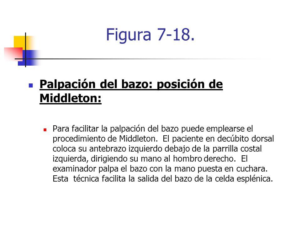 Figura 7-18. Palpación del bazo: posición de Middleton: Para facilitar la palpación del bazo puede emplearse el procedimiento de Middleton. El pacient