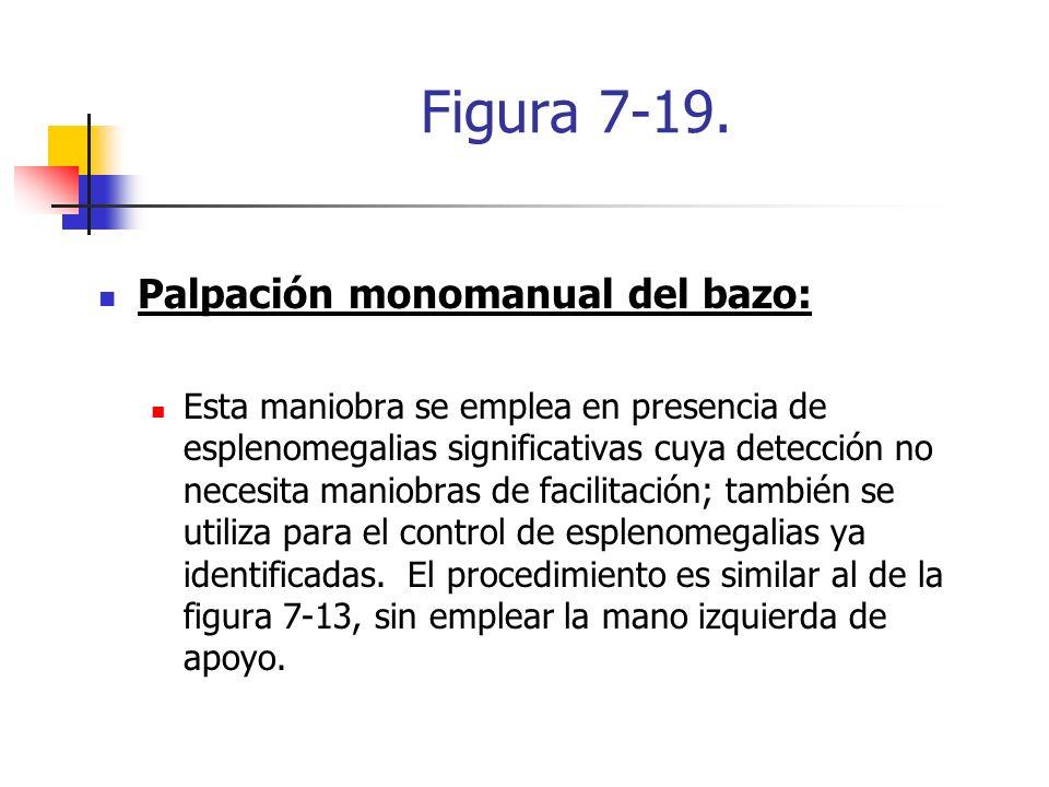 Figura 7-19. Palpación monomanual del bazo: Esta maniobra se emplea en presencia de esplenomegalias significativas cuya detección no necesita maniobra