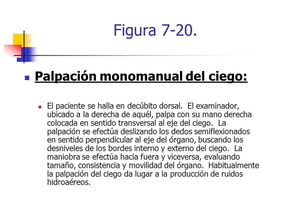 Figura 7-20. Palpación monomanual del ciego: El paciente se halla en decúbito dorsal. El examinador, ubicado a la derecha de aquél, palpa con su mano
