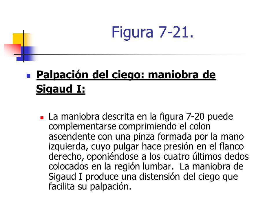 Figura 7-21. Palpación del ciego: maniobra de Sigaud I: La maniobra descrita en la figura 7-20 puede complementarse comprimiendo el colon ascendente c
