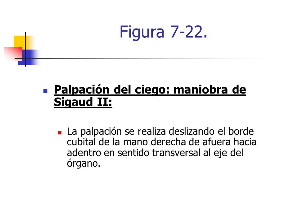 Figura 7-22. Palpación del ciego: maniobra de Sigaud II: La palpación se realiza deslizando el borde cubital de la mano derecha de afuera hacia adentr