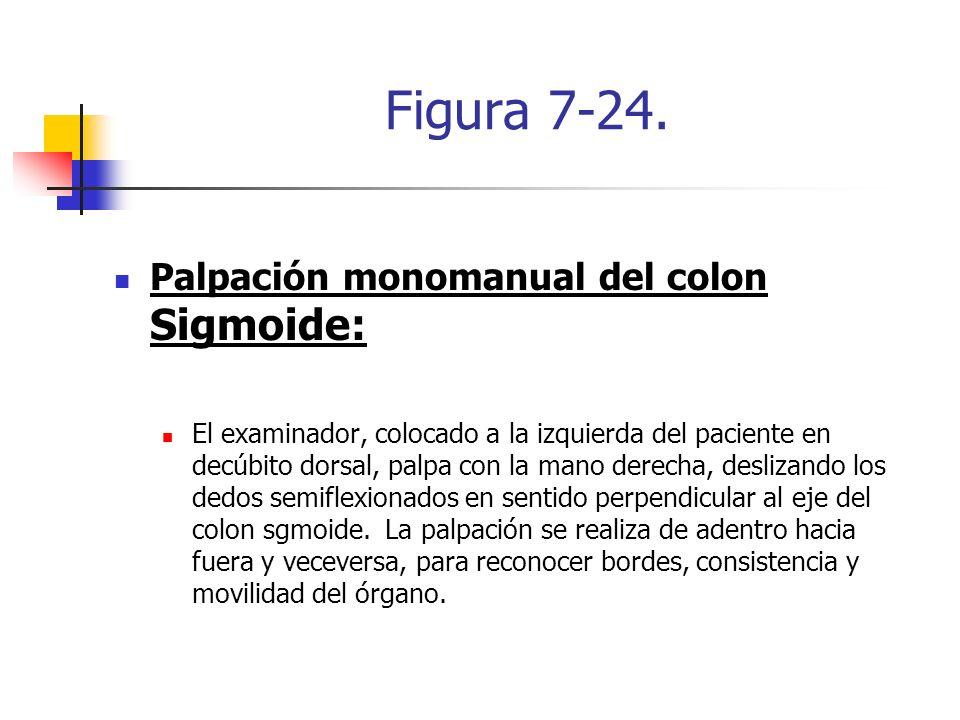 Figura 7-24. Palpación monomanual del colon Sigmoide: El examinador, colocado a la izquierda del paciente en decúbito dorsal, palpa con la mano derech