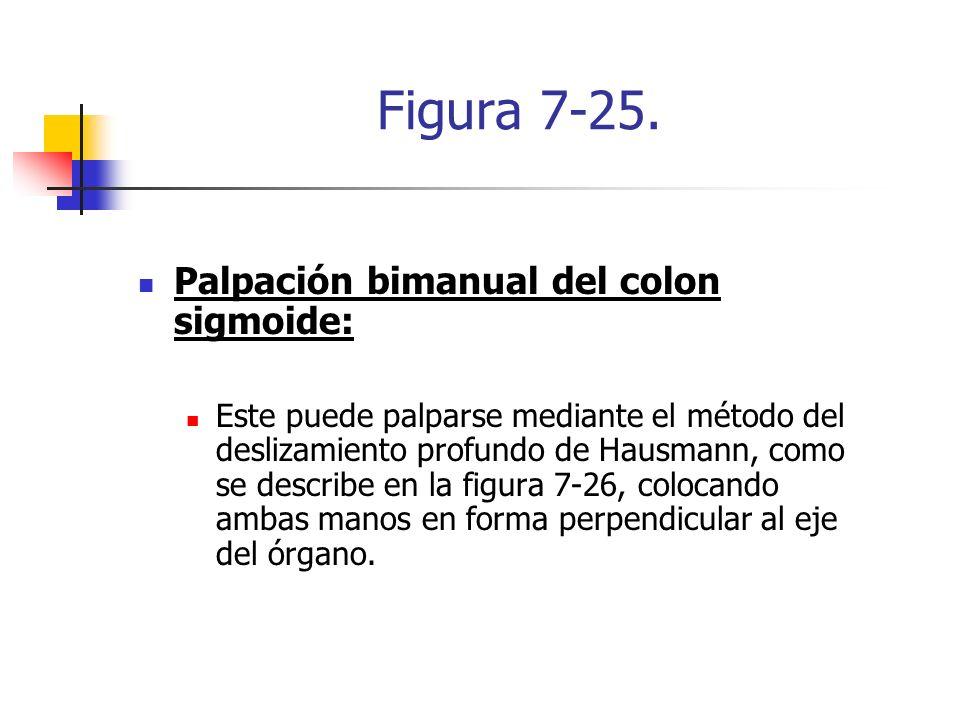 Figura 7-25. Palpación bimanual del colon sigmoide: Este puede palparse mediante el método del deslizamiento profundo de Hausmann, como se describe en