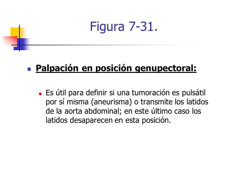 Figura 7-31. Palpación en posición genupectoral: Es útil para definir si una tumoración es pulsátil por sí misma (aneurisma) o transmite los latidos d