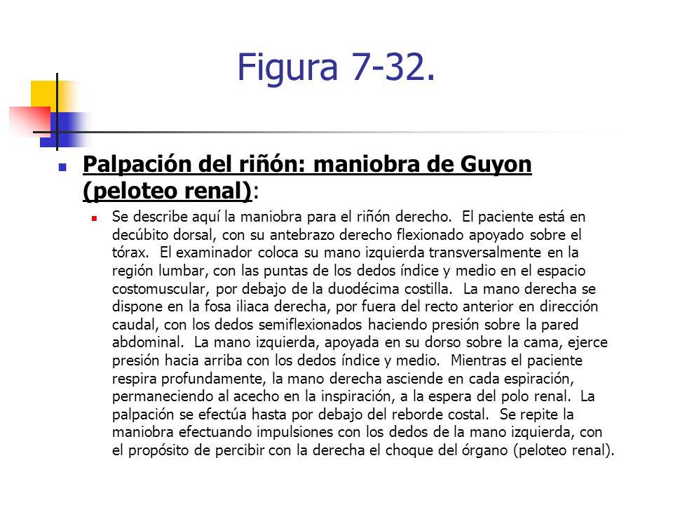 Figura 7-32. Palpación del riñón: maniobra de Guyon (peloteo renal): Se describe aquí la maniobra para el riñón derecho. El paciente está en decúbito