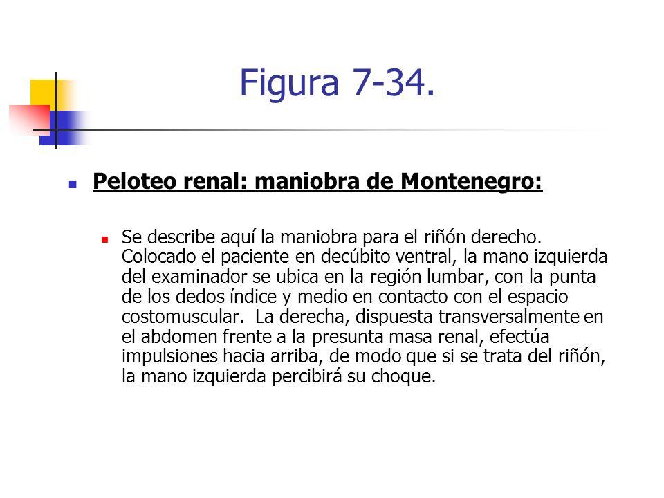 Figura 7-34. Peloteo renal: maniobra de Montenegro: Se describe aquí la maniobra para el riñón derecho. Colocado el paciente en decúbito ventral, la m