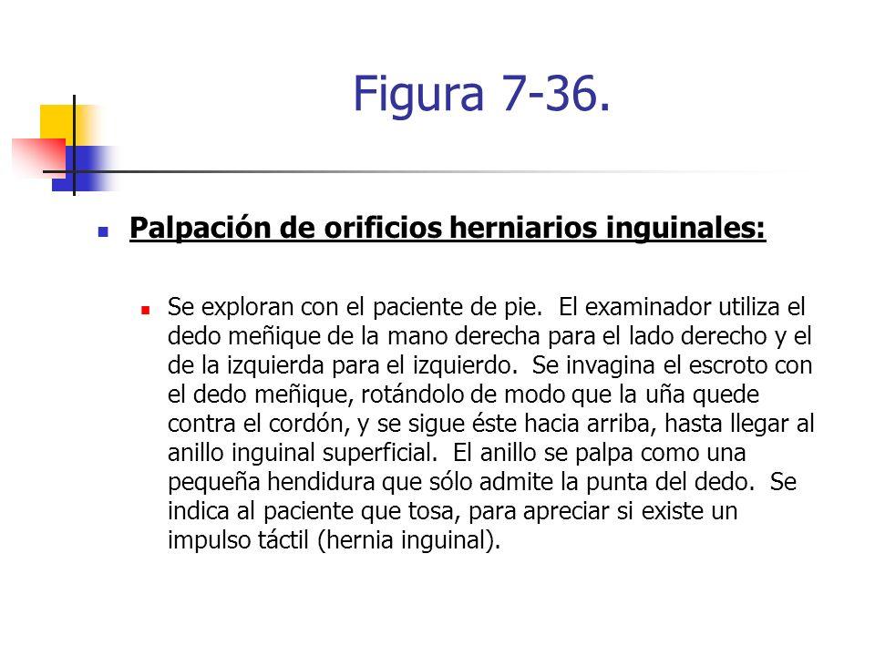 Figura 7-36. Palpación de orificios herniarios inguinales: Se exploran con el paciente de pie. El examinador utiliza el dedo meñique de la mano derech