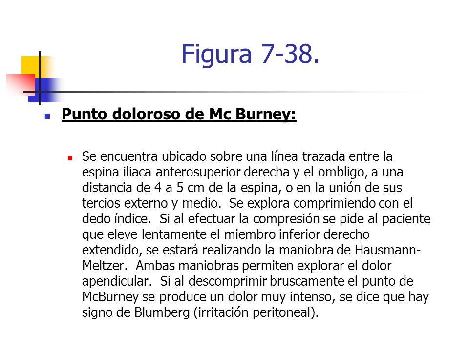 Figura 7-38. Punto doloroso de Mc Burney: Se encuentra ubicado sobre una línea trazada entre la espina iliaca anterosuperior derecha y el ombligo, a u