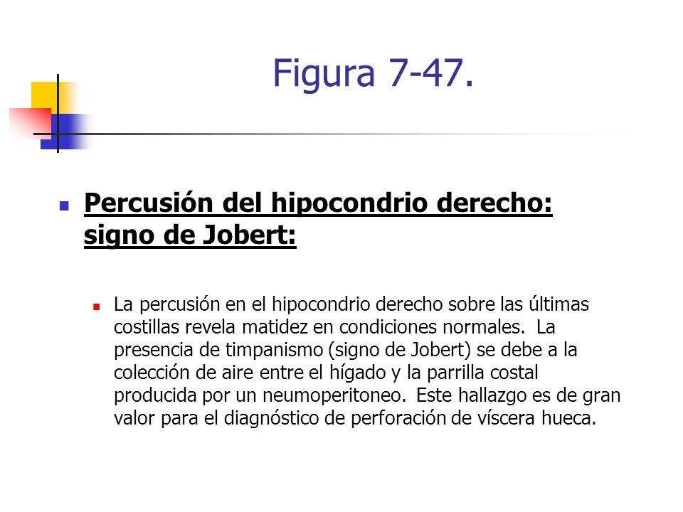 Figura 7-47. Percusión del hipocondrio derecho: signo de Jobert: La percusión en el hipocondrio derecho sobre las últimas costillas revela matidez en