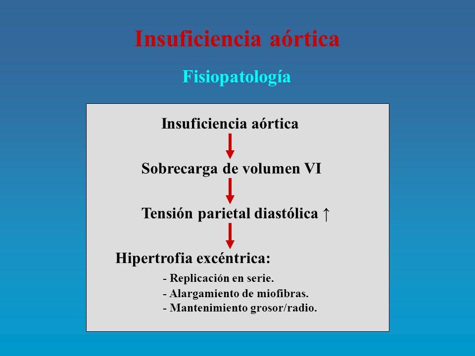 Insuficiencia aórtica Clínica: A.- Formas: - Aguda: Endocarditis (10 %), Disección, Traumatismo.