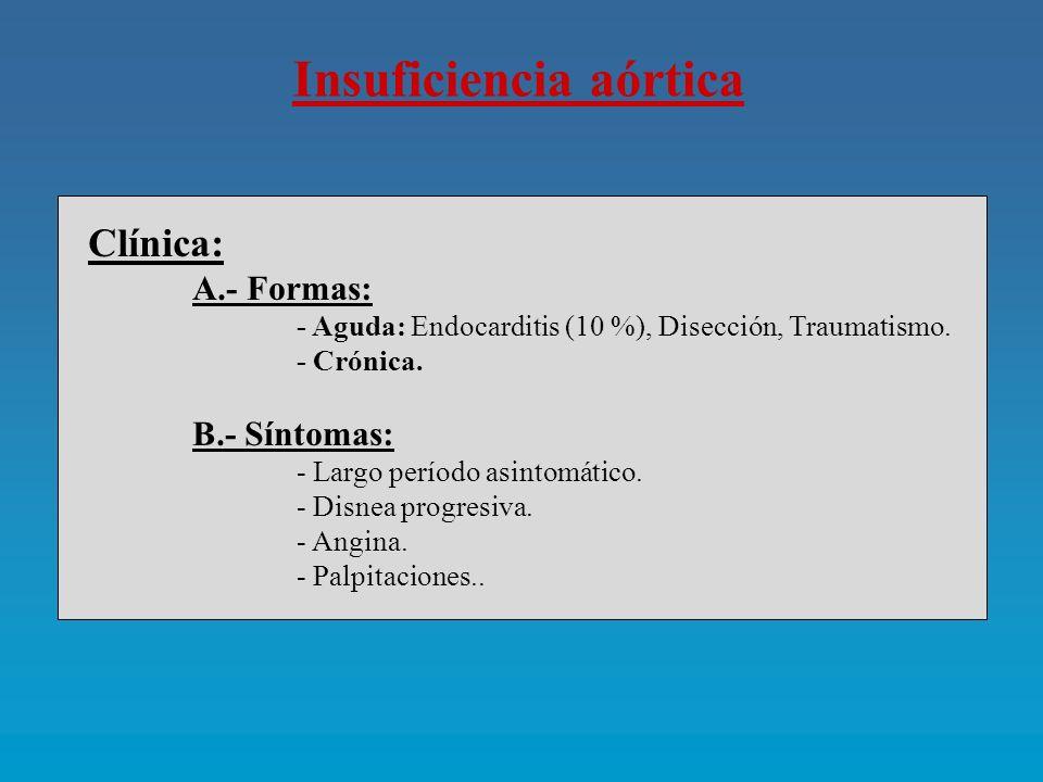 Insuficiencia aórtica Historia natural: A.- Factores: - Síntomas.