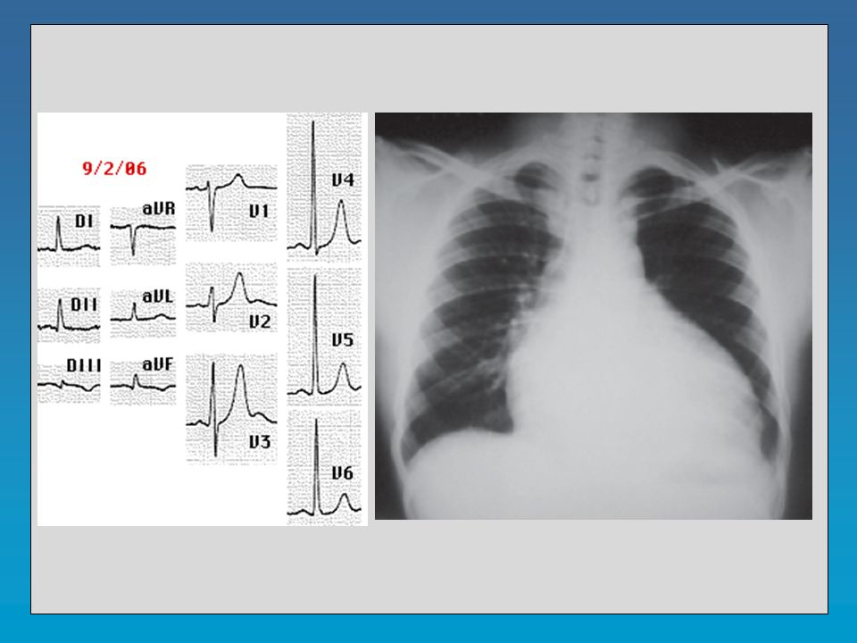 Insuficiencia aórtica Eco-Doppler 1.- Diagnóstico positivo.