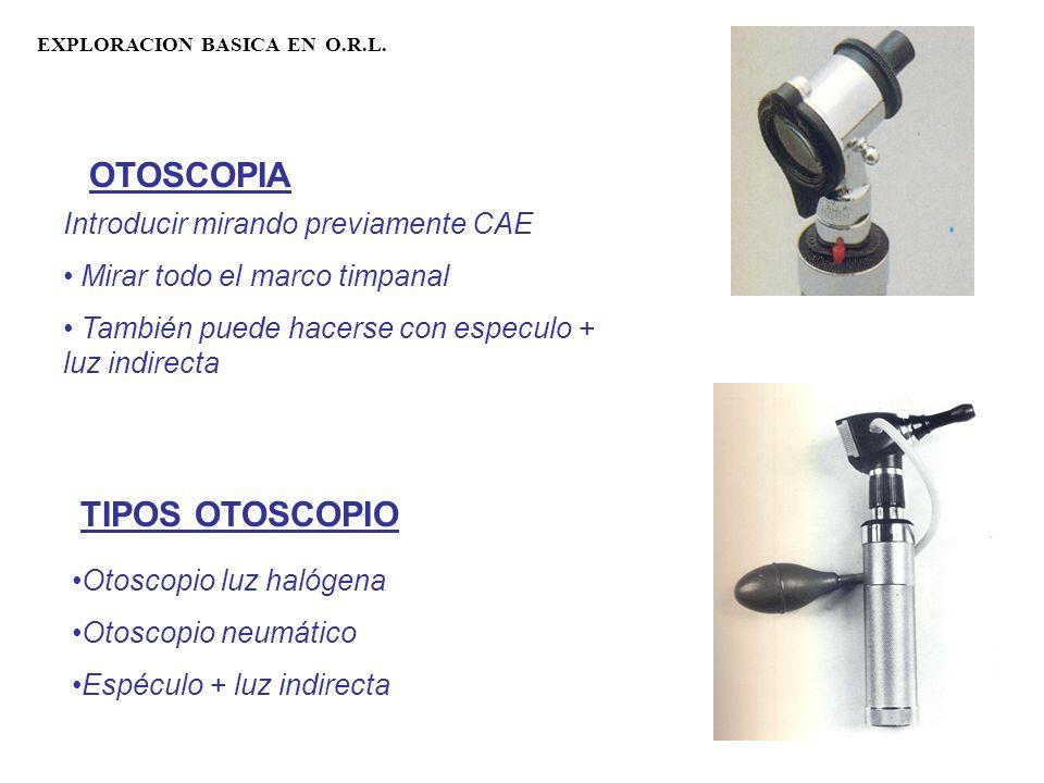 EXPLORACION BASICA EN O.R.L. OTOSCOPIA Introducir mirando previamente CAE Mirar todo el marco timpanal También puede hacerse con especulo + luz indire