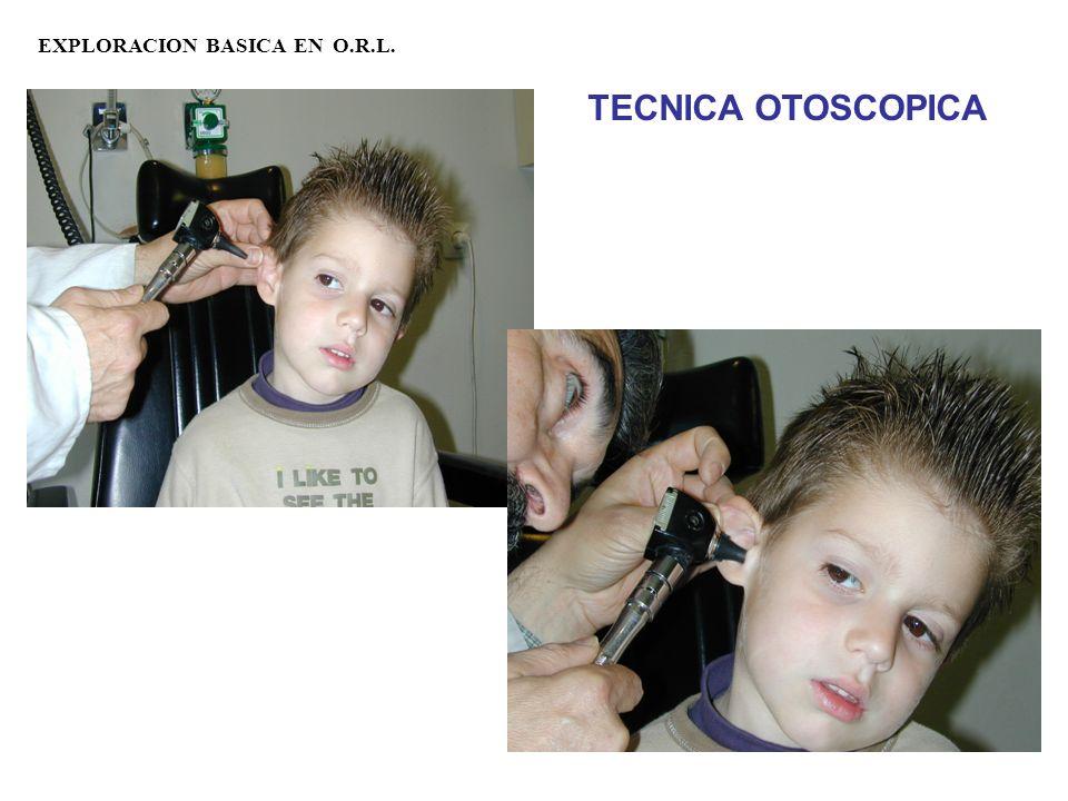 EXPLORACION BASICA EN O.R.L. TECNICA OTOSCOPICA