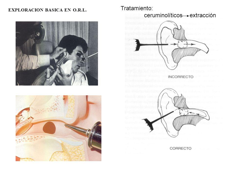 EXPLORACION BASICA EN O.R.L. Tratamiento: ceruminolíticos extracción