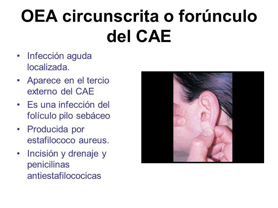 OEA circunscrita o forúnculo del CAE Infección aguda localizada. Aparece en el tercio externo del CAE Es una infección del folículo pilo sebáceo Produ