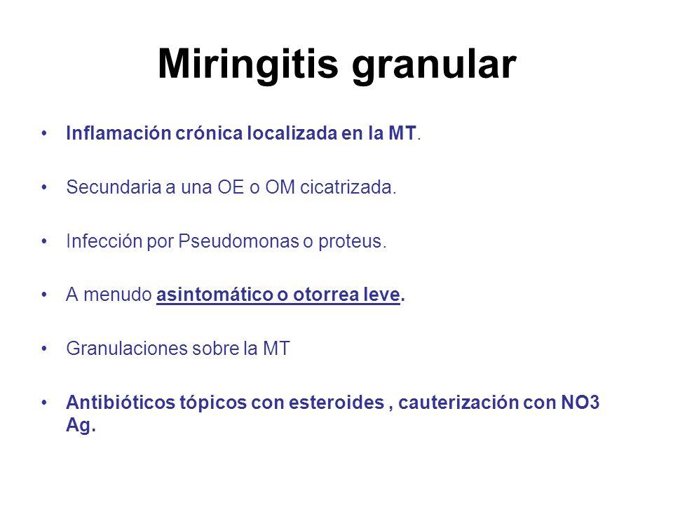 Miringitis granular Inflamación crónica localizada en la MT. Secundaria a una OE o OM cicatrizada. Infección por Pseudomonas o proteus. A menudo asint