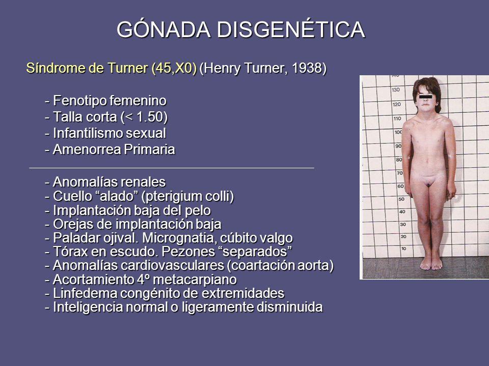 Síndrome de Turner (45,X0) (Henry Turner, 1938) - Fenotipo femenino - Fenotipo femenino - Talla corta (< 1.50) - Talla corta (< 1.50) - Infantilismo s